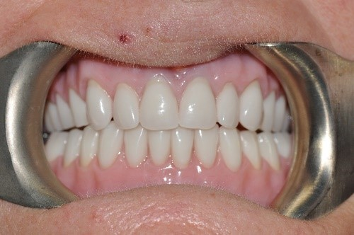 Dentures 1